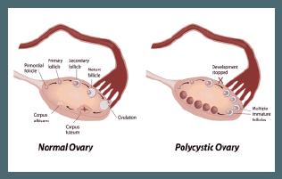 normal ovary, polycystic ovary