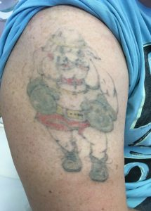 After using the picosure for tattoo removal