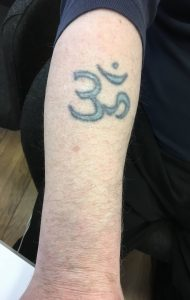 Before using picosure for laser Tattoo removal