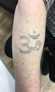 After using the picosure for laser tatto removal | Razor2laser