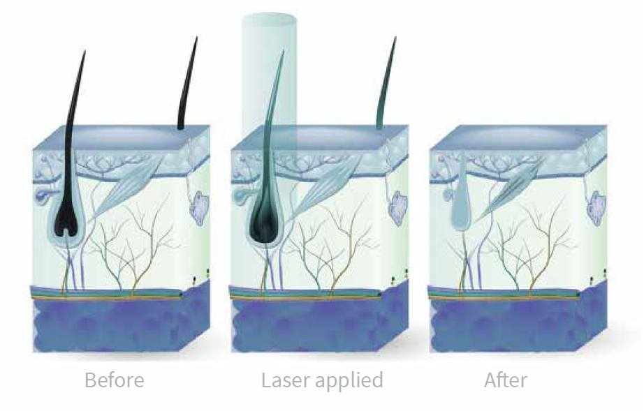 How Laser hair removal works: Before, during and after laser treatment starts