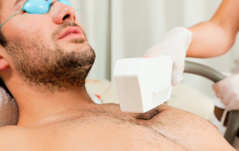 laser hair removal for men includes chest hair removal