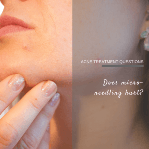 Does micro-needling hurt