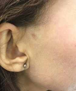 After Skin tag removal in Chichester clinic